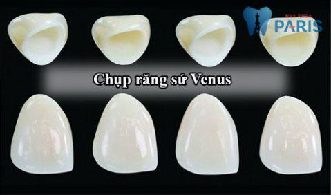 Chụp răng sứ Venus có tốt hay không và cách kéo dài độ bền? 1