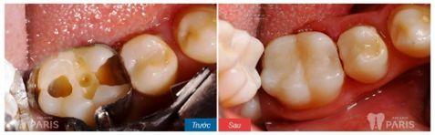 Chụp răng sứ Venus có tốt hay không và cách kéo dài độ bền? 4