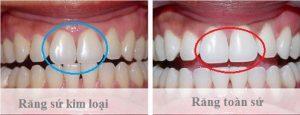 Bọc răng sứ Dresden có gì đặc sắc ? – Ưu nhược điểm, quy trình thực hiện hiệu quả nhất