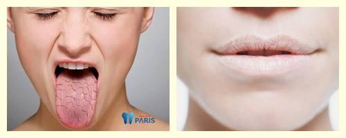 Khô miệng khát nước là bệnh gì? Nguyên nhân & Cách điều trị 100% 2