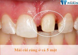 Bọc răng sứ có hại không ? – Chuyên gia trả lời