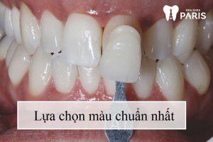 Bọc răng sứ Vita có tốt hay không? phân tích từ chuyên gia