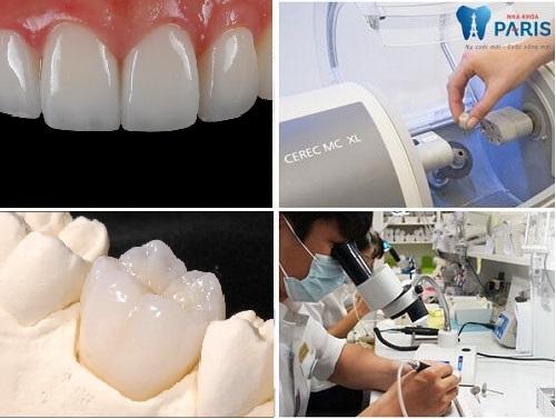 [ Tạp chí Nha Khoa]: Bọc răng sứ có đau không ?