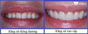 Dòng răng sứ cao cấp bền chắc gấp 3 lần răng sứ thông thường 3