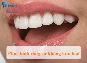 Răng sứ không kim loại có tốt không ?
