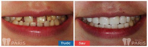 bọc răng sứ có hại không 011