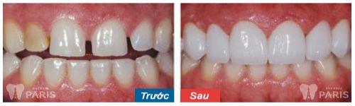 ưu điểm của răng sứ Cercon - khách hàng trải nghiệm tại nha khoa Paris