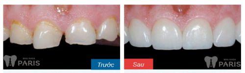 ưu điểm của răng sứ Cercon - khách hàng tại nha khoa Paris