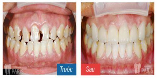 Răng sâu ăn vào tủy – Nguyên nhân và cách khắc phục dứt điểm nhất 4