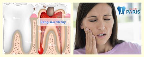 Răng sâu ăn vào tủy – Nguyên nhân và cách khắc phục dứt điểm nhất 1