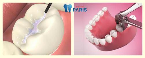 Răng sâu ăn vào tủy – Nguyên nhân và cách khắc phục dứt điểm nhất 3