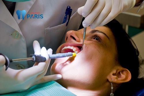 Răng sâu ăn vào tủy – Nguyên nhân và cách khắc phục dứt điểm nhất 2