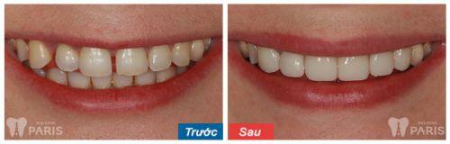 Răng sứ Cercon sử dụng được bao lâu4