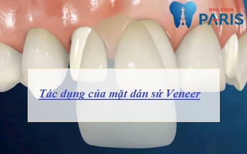 TOP 3 Tác dụng của mặt dán sứ Veneer bạn không nên bỏ qua 1