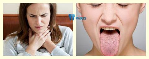 Triệu chứng, nguyên nhân & phương pháp điều trị Khô Miệng Khô Họng 1