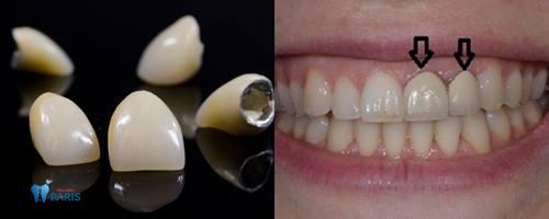 Bọc răng sứ Titan có tốt không - Tìm hiểu chi tiết từ chuyên gia 3