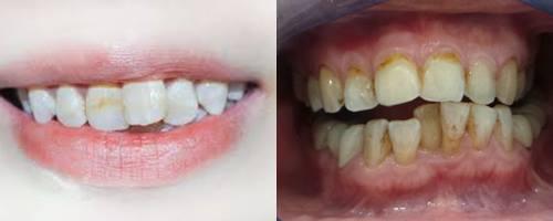 Cách chỉnh sửa răng cửa mọc lệch Hiệu Quả nhất 2018 2