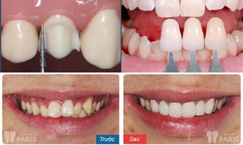 Cách chỉnh sửa răng cửa mọc lệch Hiệu Quả nhất 2018 3