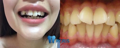 Cách chỉnh sửa răng cửa mọc lệch Hiệu Quả nhất 2018 1