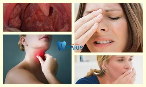 Khô họng khó thở: Triệu chứng và cách khắc phục dứt điểm 2