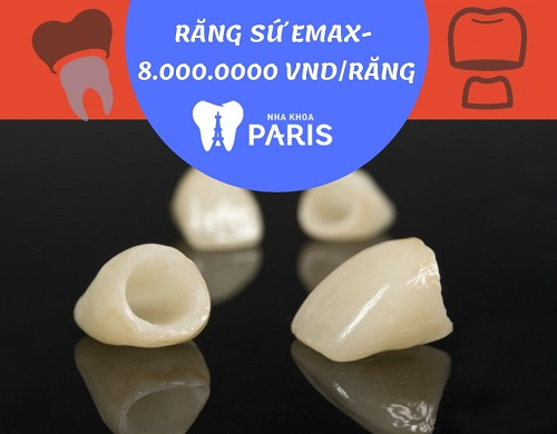 Mức giá bọc răng sứ Emax tốt nhất là bao nhiêu? Bảng giá chi tiết 1