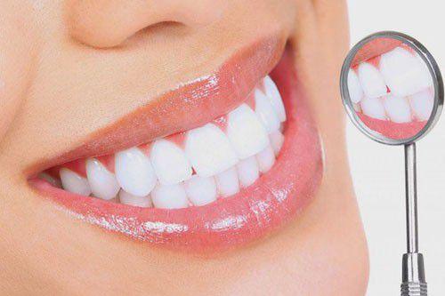 Mức giá bọc răng sứ Emax tốt nhất là bao nhiêu? Bảng giá chi tiết 2