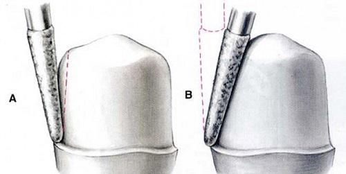 Giải đáp thắc mắc: Có nên mài răng khểnh đi không? 2