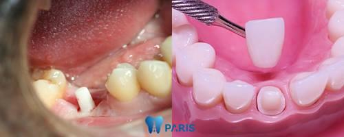Răng sâu độ 3: Biểu hiện và cách điều trị dứt điểm bạn nên biết 4