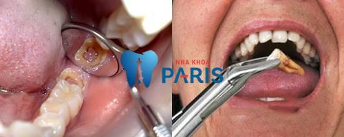 Răng sâu độ 3: Biểu hiện và cách điều trị dứt điểm bạn nên biết 3