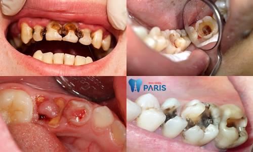 Răng sâu độ 3: Biểu hiện và cách điều trị dứt điểm bạn nên biết 2