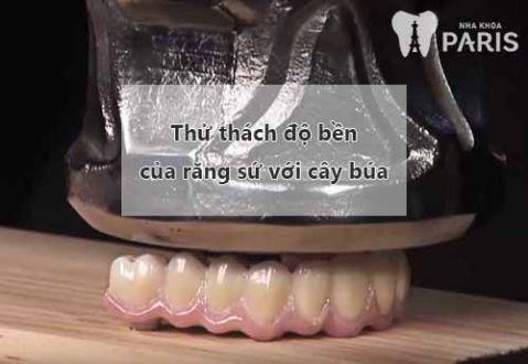 Tổng hợp 10 lợi ích giúp bạn quyết định có nên bọc răng sứ hay không 2