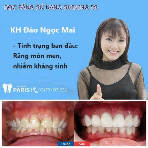 Tổng hợp 10 lợi ích giúp bạn quyết định có nên bọc răng sứ hay không 4