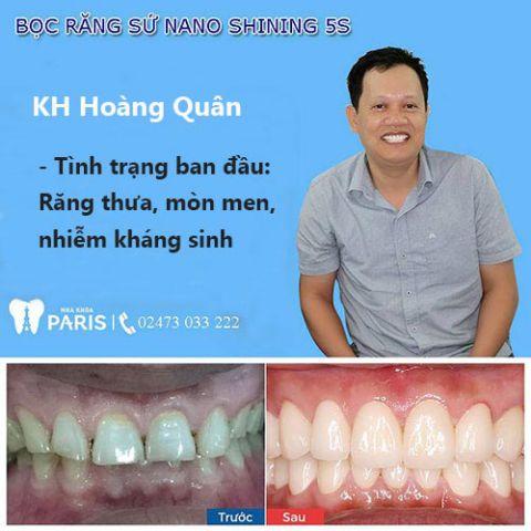 Tổng hợp 10 lợi ích giúp bạn quyết định có nên bọc răng sứ hay không 6