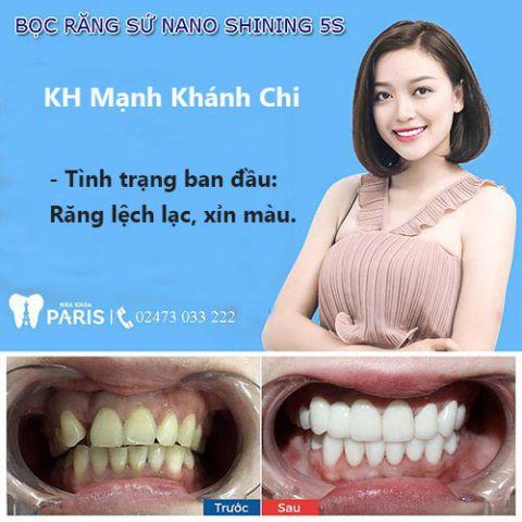Tổng hợp 10 lợi ích giúp bạn quyết định có nên bọc răng sứ hay không 5