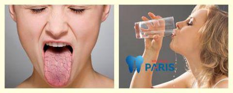 Khô miệng khát nước về đêm: Nguyên nhân & Cách điều trị hiệu quả 1