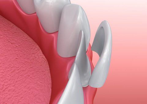 Mặt dán sứ veneer khôi phục răng cửa bị mẻ.