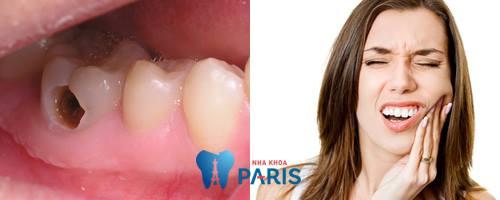 Bất ngờ với 2 cách chữa răng sâu bị nhức hiệu quả sau vài phút 1