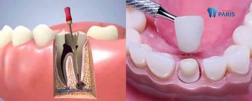 Bất ngờ với 2 cách chữa răng sâu bị nhức hiệu quả sau vài phút 4