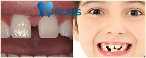 Nguy hại khôn lường và cách khắc phục Răng thưa ở trẻ em HIỆU QUẢ 2