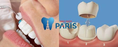 răng sâu bị lung lay - bọc sứ