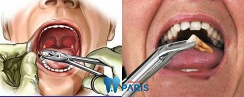 răng sâu bị lung lay - bọc sứ1