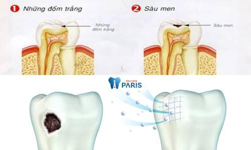 Răng sâu nhẹ2