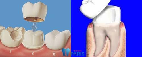 răng sâu nhẹ 6