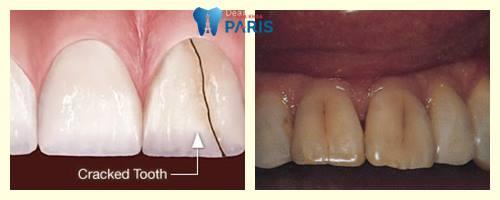 Răng bị nứt - nguyên nhân là gì