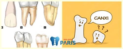 Răng bị nứt do đâu và cách khắc phục