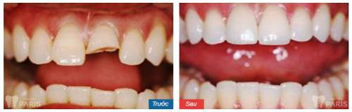 Chữa răng bị nứt bằng phương pháp bọc răng sứ thẩm mỹ