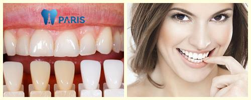 Răng bị nứt và phương pháp bọc răng sứ giúp khắc phục