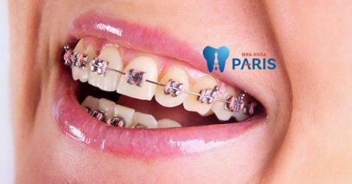 """Cách chỉnh răng hô """"vẩu"""" AN TOÀN & HIỆU QUẢ chi sau 3 ngày 2"""