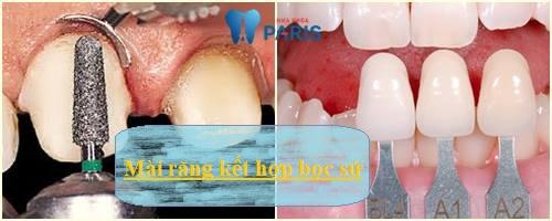 Có nên mài răng cửa hô vẩu cho đều và đẹp hay không? 3