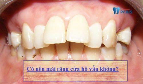 Có nên mài răng cửa hô vẩu cho đều và đẹp hay không? 1
